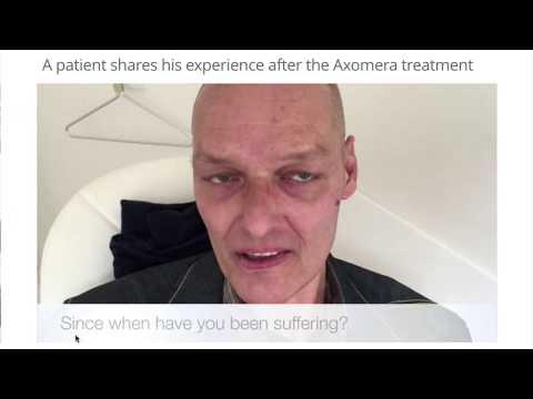 Clusterkopfschmerz-Therapie: Patientenbericht